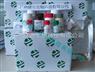 甲型肝炎病毒IgM抗体诊断试剂盒